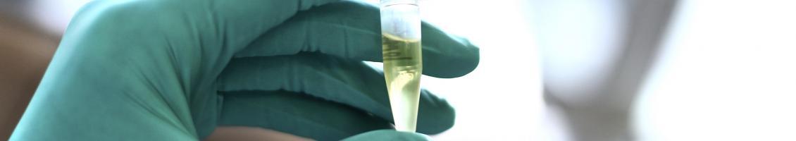 Green gloved hand holding test tube